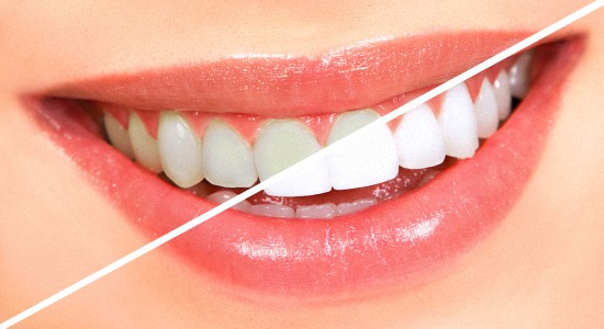 Белоснежная улыбка от клиники доктора Моржуева